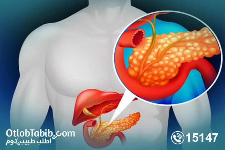 ممنوعات-التهاب-البنكرياس