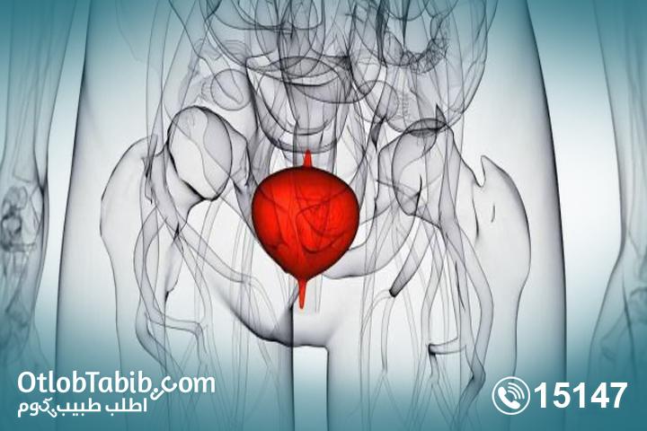 التهاب-المثانة-بعد-الزواج