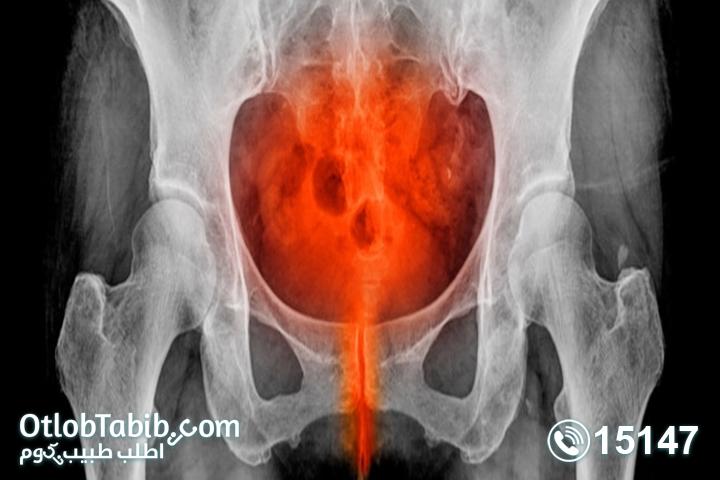 سبب-التهاب-المثانة-عند-الاطفال