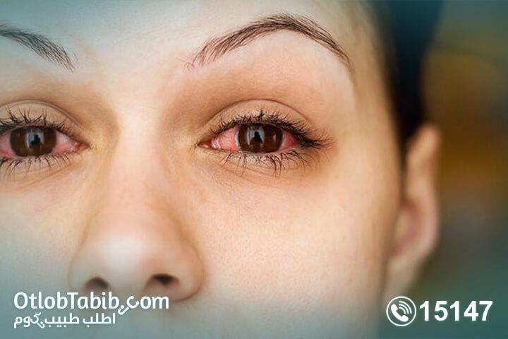 اعراض-حساسية-الانف