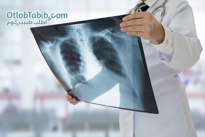 كيفية تجنب الإصابة بالالتهاب الرئوي