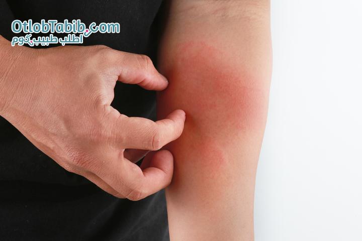 أنواع الفطريات الجلدية وبعض النصائح للوقاية
