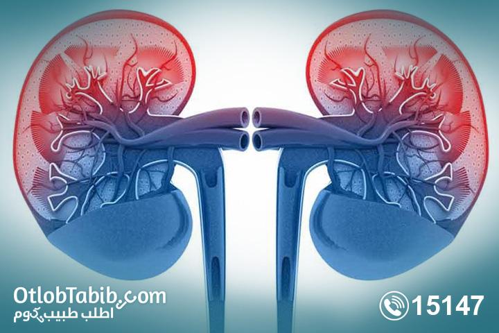 التهاب كبيبات الكلى .. تعرف على طرق الوقاية والأسباب