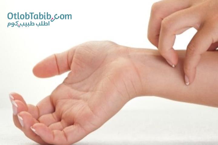 نصائح للوقاية من الأمراض الجلدية التي تظهر في الشتاء