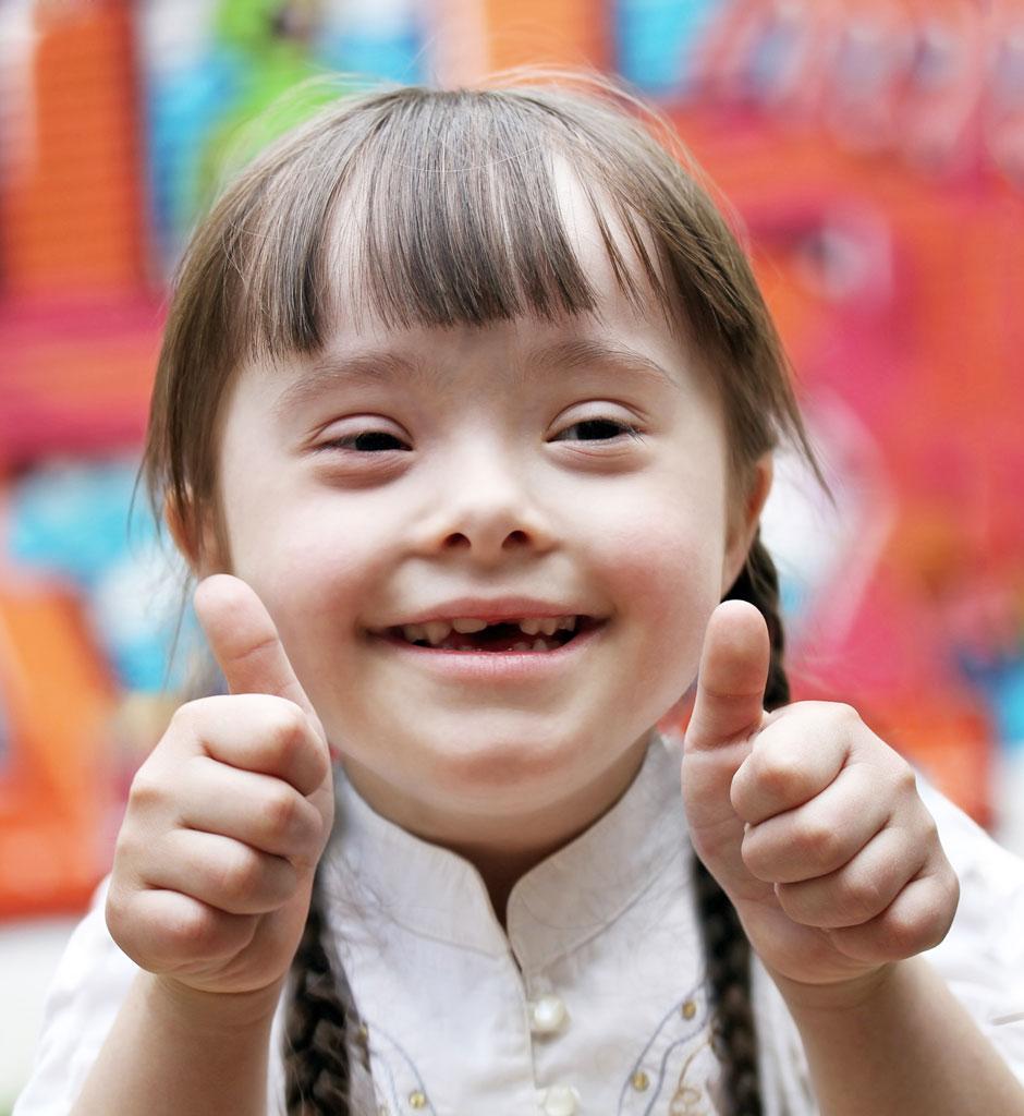 10 نصائح للتعامل مع الطفل المنغولي (متلازمة داون)