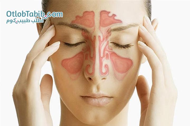 التهاب الجيوب الأنفية.. أنواعه.. أعراضه وعلاجه